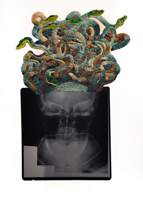 Matthew Cox - Medusa